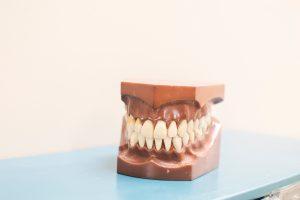 מחיר השתלת שיניים